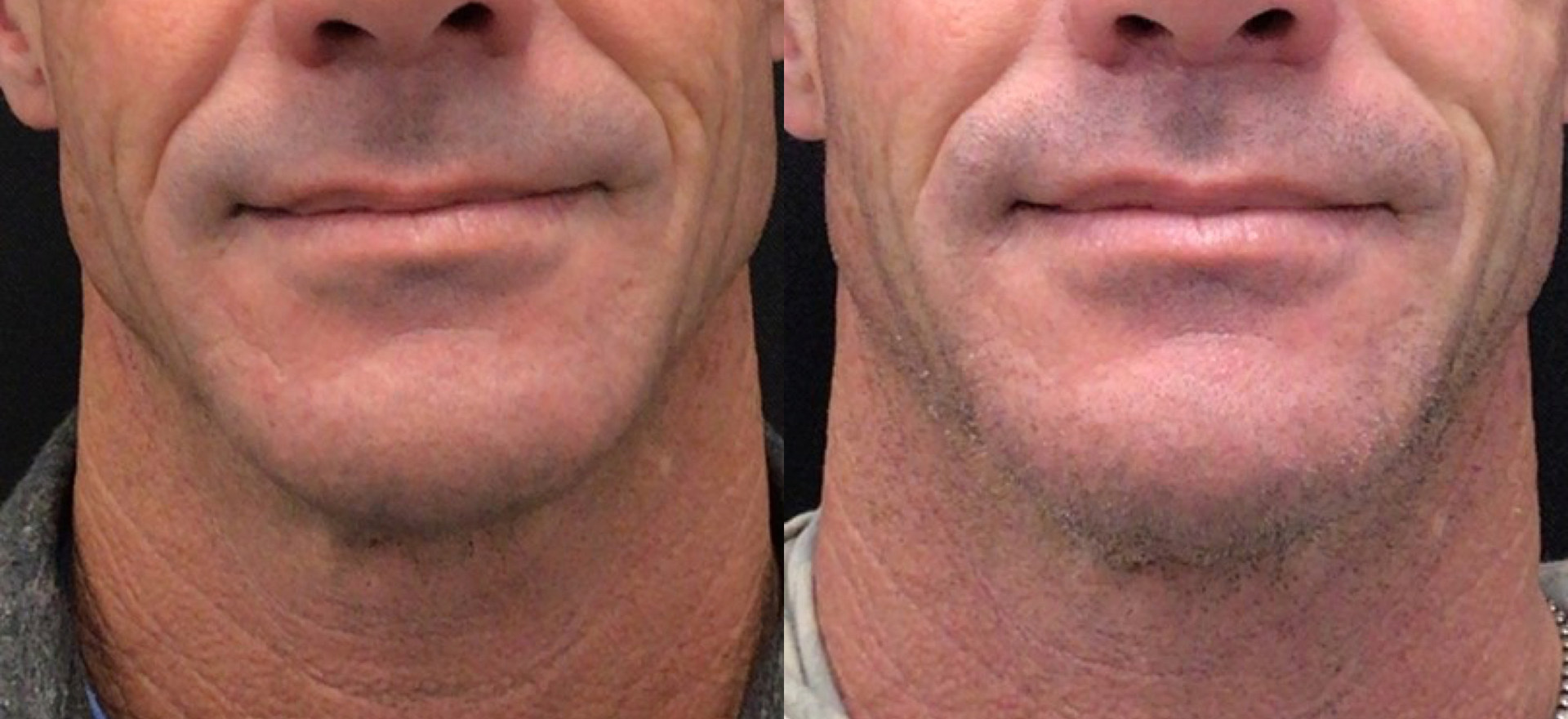 Close Up: Before and After Upper Lip Lift
