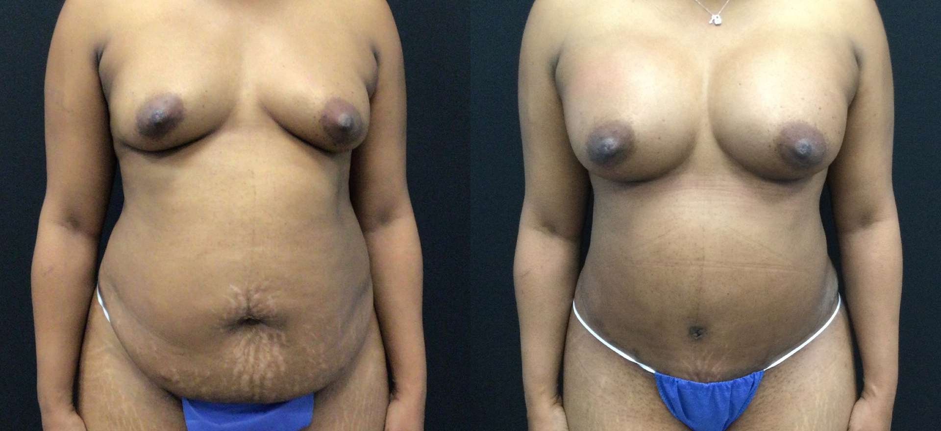 Before and After Tummy Tuck and Breast Implants