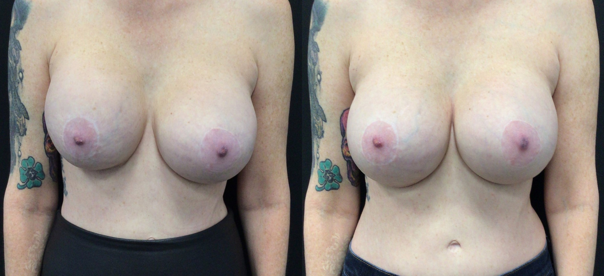 Before and After Breast Implant Exchange