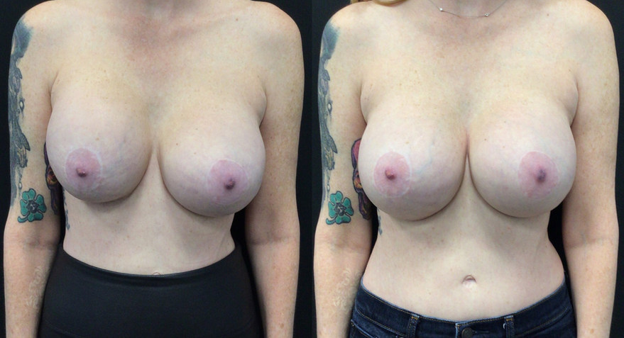 Before and After Implant Exchang with Total Capsulectomy