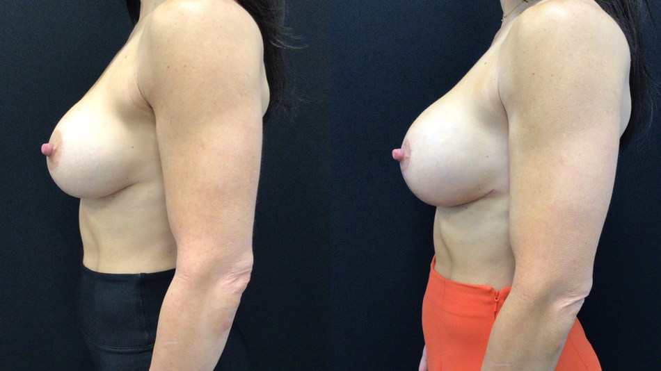 Before and After Revision Breast Lift with Implants