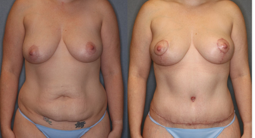 Before and After Tummy Tuck and Breast Lift