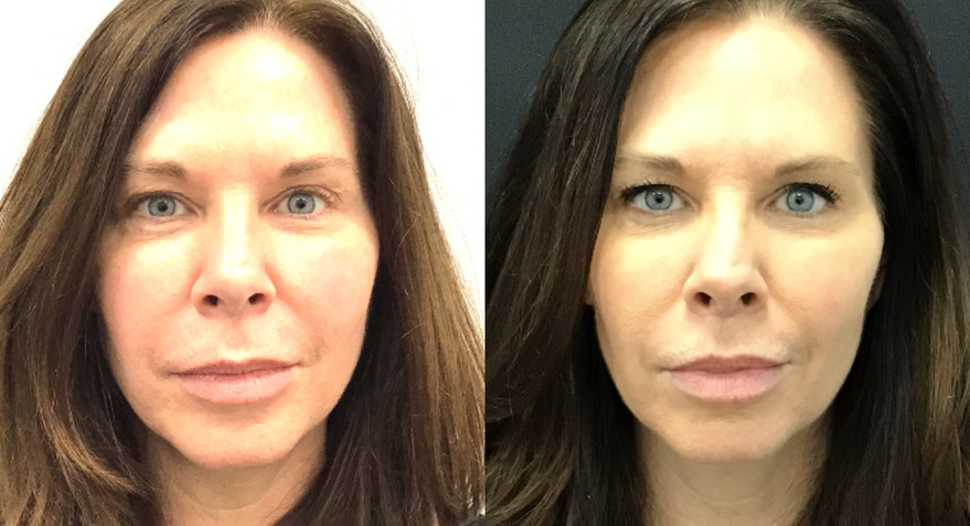 Before and After Upper Lip Lift