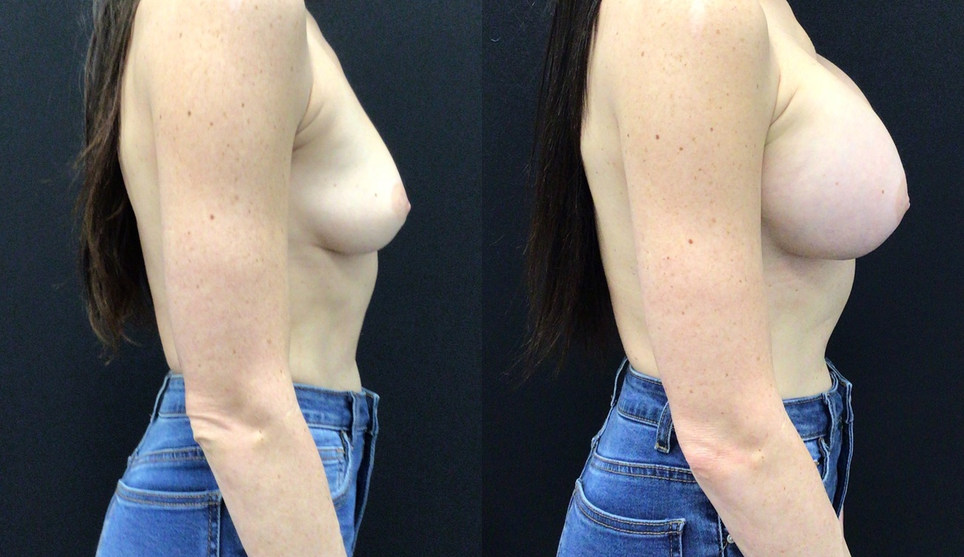 Before and After Breast Surgery