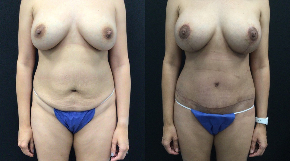 Breast Lift with Implants and Tummy Tuck