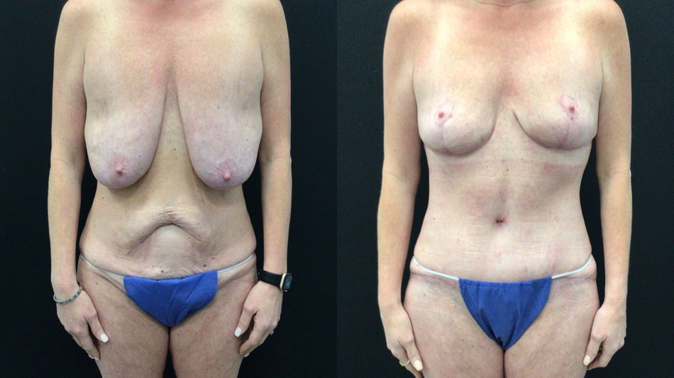 Before and After Breast Lift and Tummy Tuck following significant weight loss