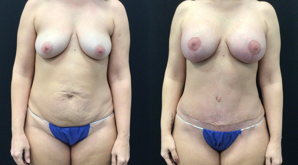 Before and After Tummy Tuck and Breast Lift with Implants