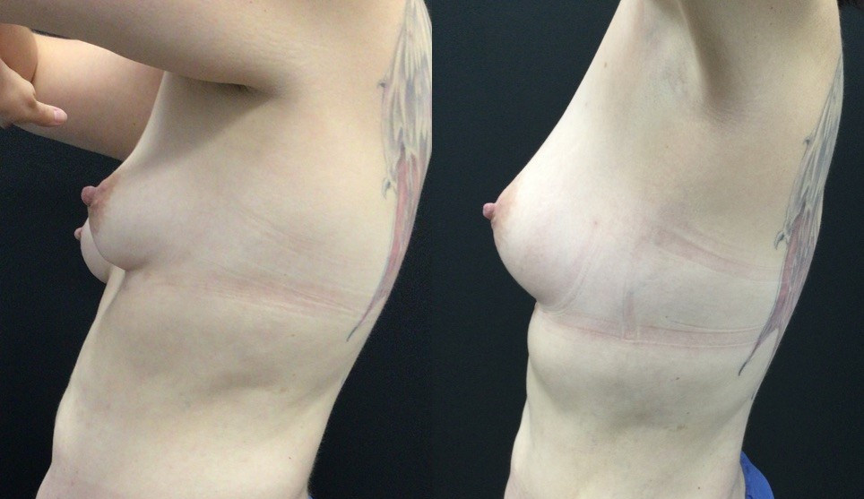 Fat Grafting for Breast Augmentation
