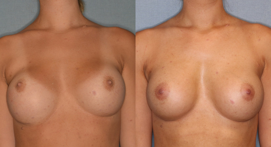 Before and After Right Breast Revision