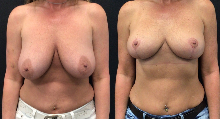 6 Weeks Before and After Breast Lift