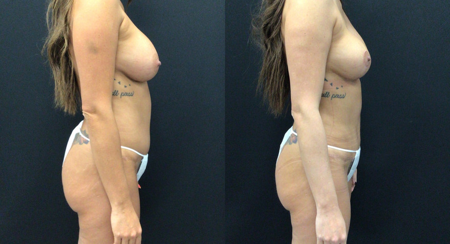 Before and After Mini Tummy Tuck and Breast Lift with Implants