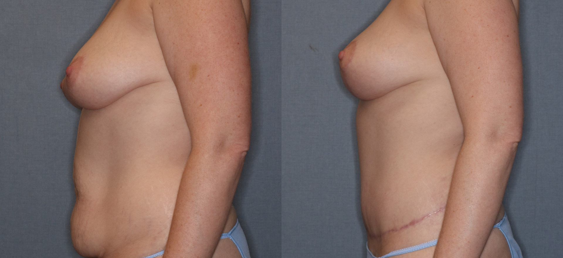 Before and After Breast Lift without Implants