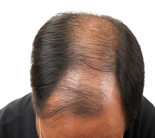 bald+indian+man.png