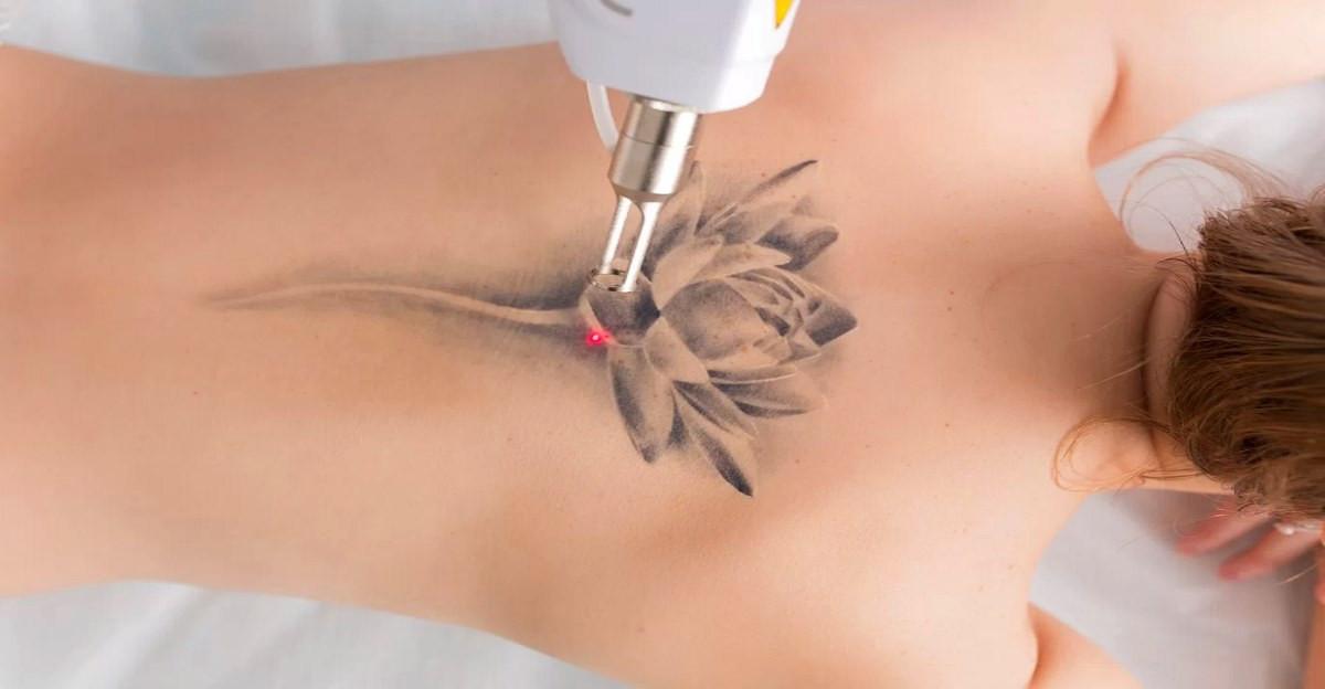 laser-tattoo-removal (1).jpg