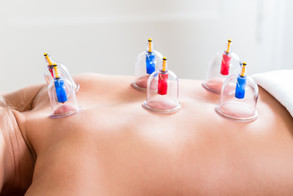 Cupping Therapy.jpg