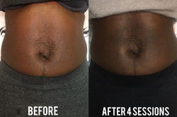 Tone That Tummy Package