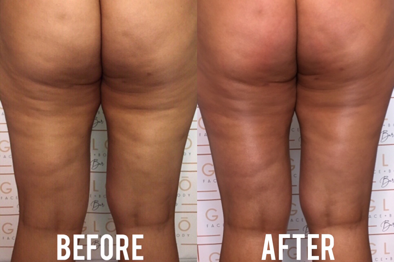 See-Ya Cellulite Package