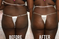 Build a Better Booty Package