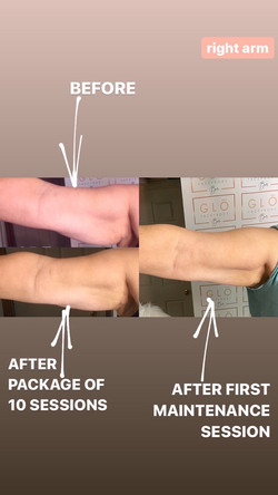 Farewell Flabby Arms Package