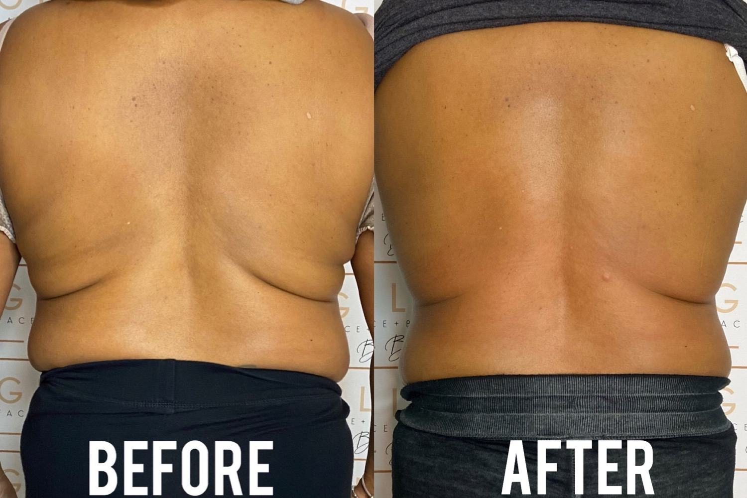 Bye-Bye Back Fat Package