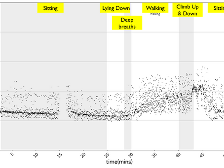Irregularly irregular rhythm - 71 years old female