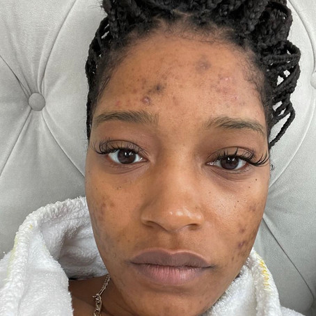 KeKe Palmer's Battle With PCOS