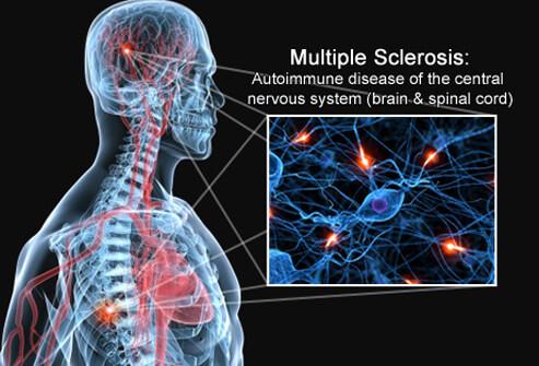 Neurology Report Back