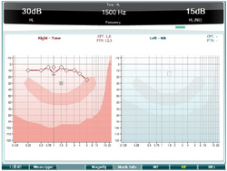 High Frequency Audiometry