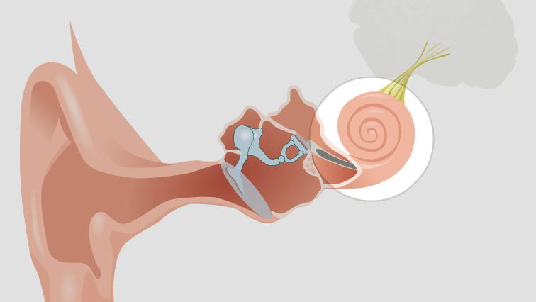 Sensorineural hearing loss (SNHL)