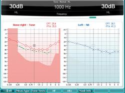 Pure Tone Audiometry -PTA
