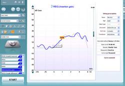 Real Ear Measurements (REM)