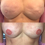 Breast Tattooing - 3D Nipple & Areola Tattooing