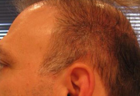 Scalp Tattooing to cover hair transplant scar
