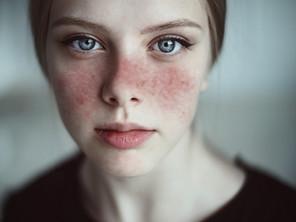 Le Lupus, l'engagement caritatif de l'ADEDS 01