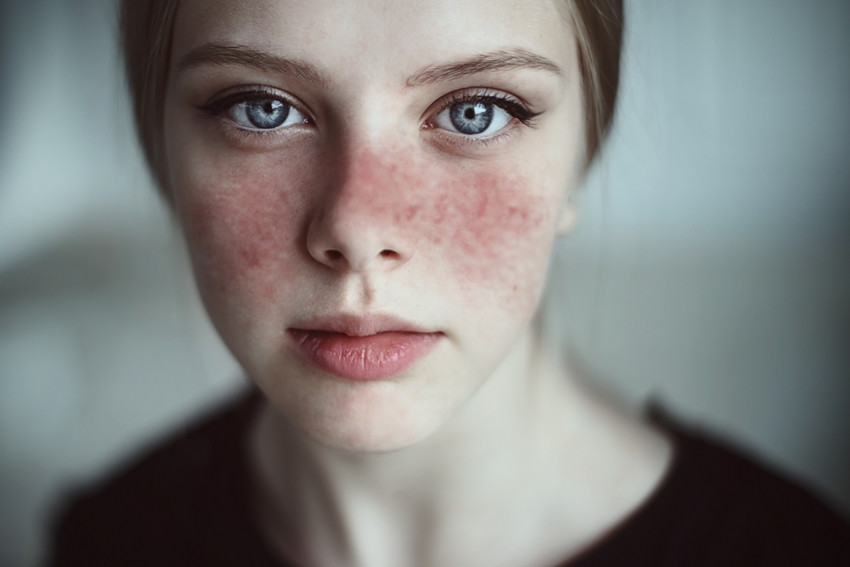 Jeune fille atteinte du Lupus