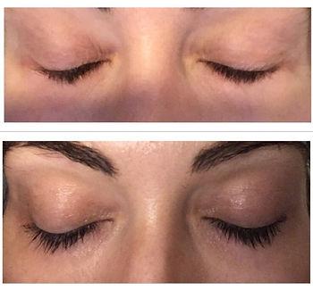 Eyelash enhancing serum at Park Street Clinic