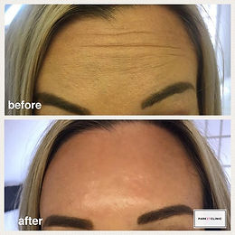 Anti-wrinkle injections are a great way