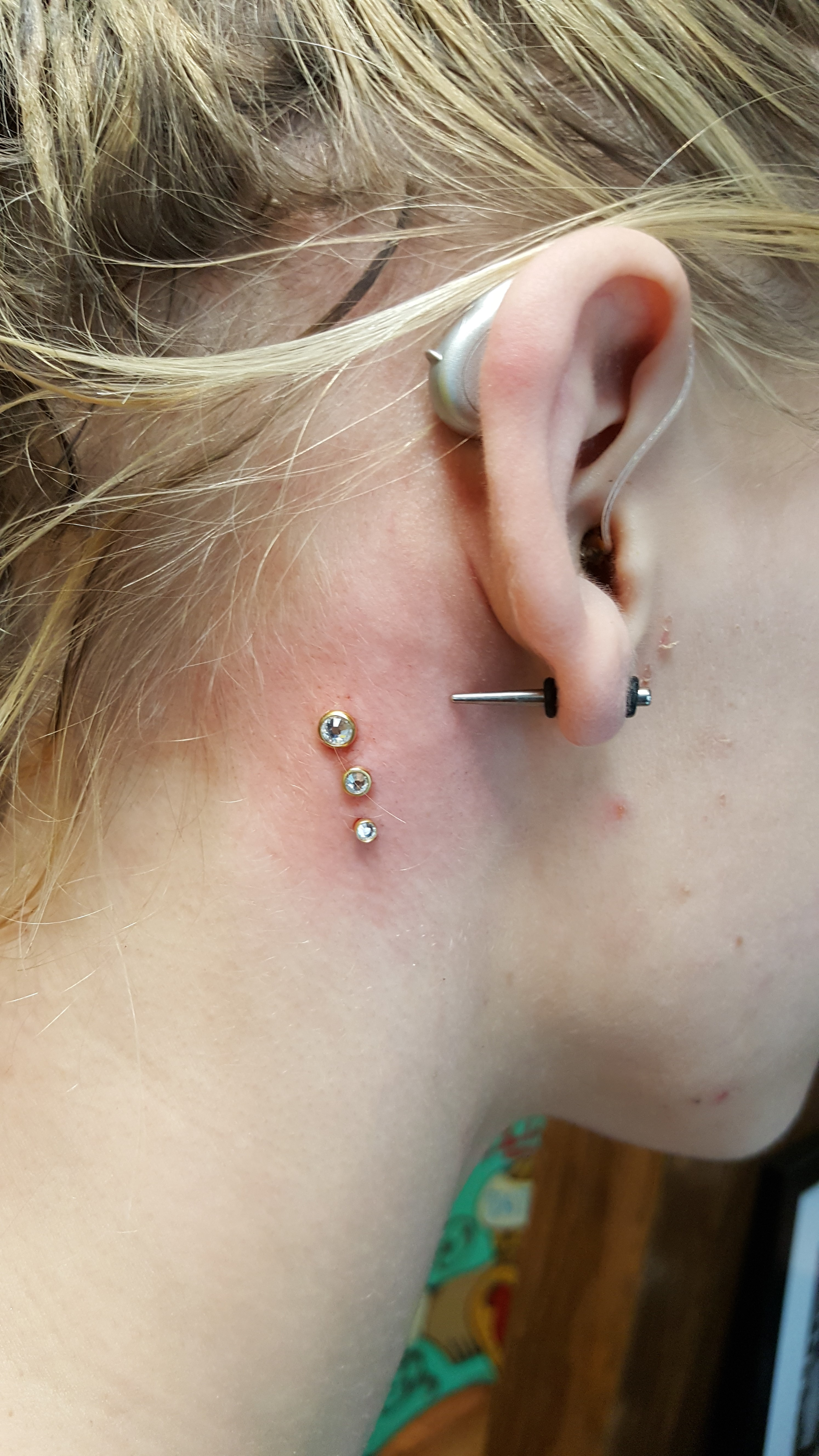 Microdermals 3, 4, and 5 mm