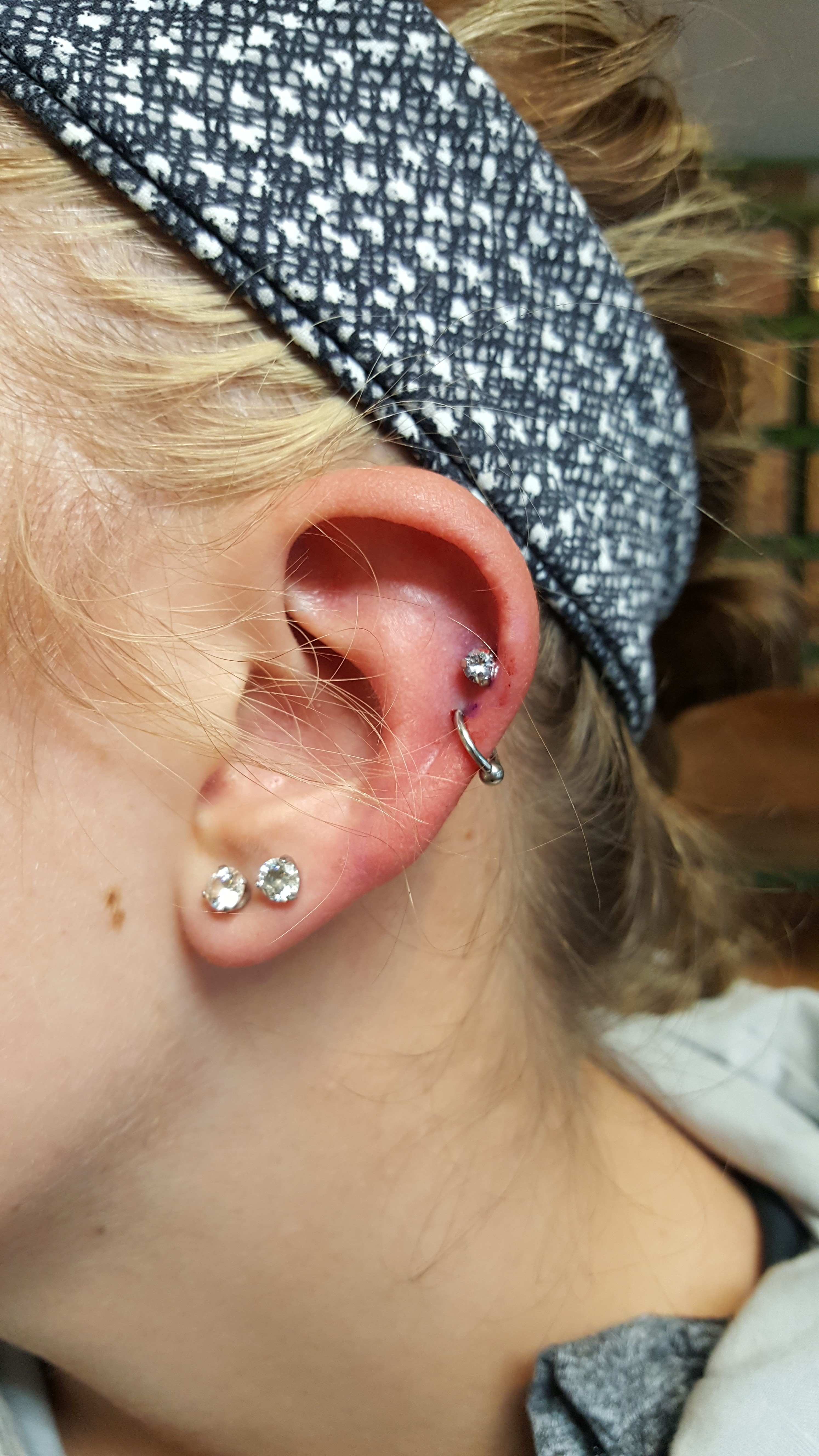 cartilage1.1