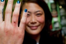 Dermal finger02