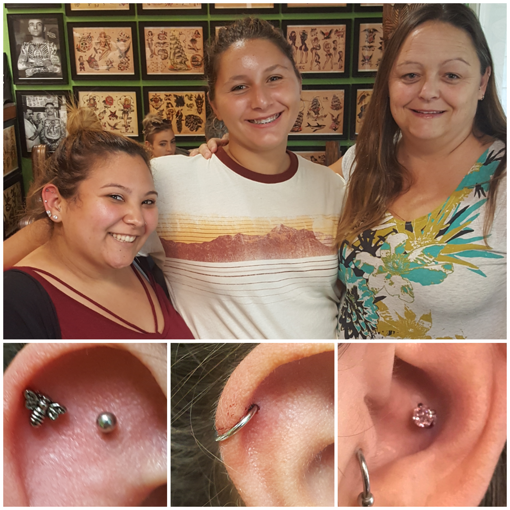 Cartilage and Conch