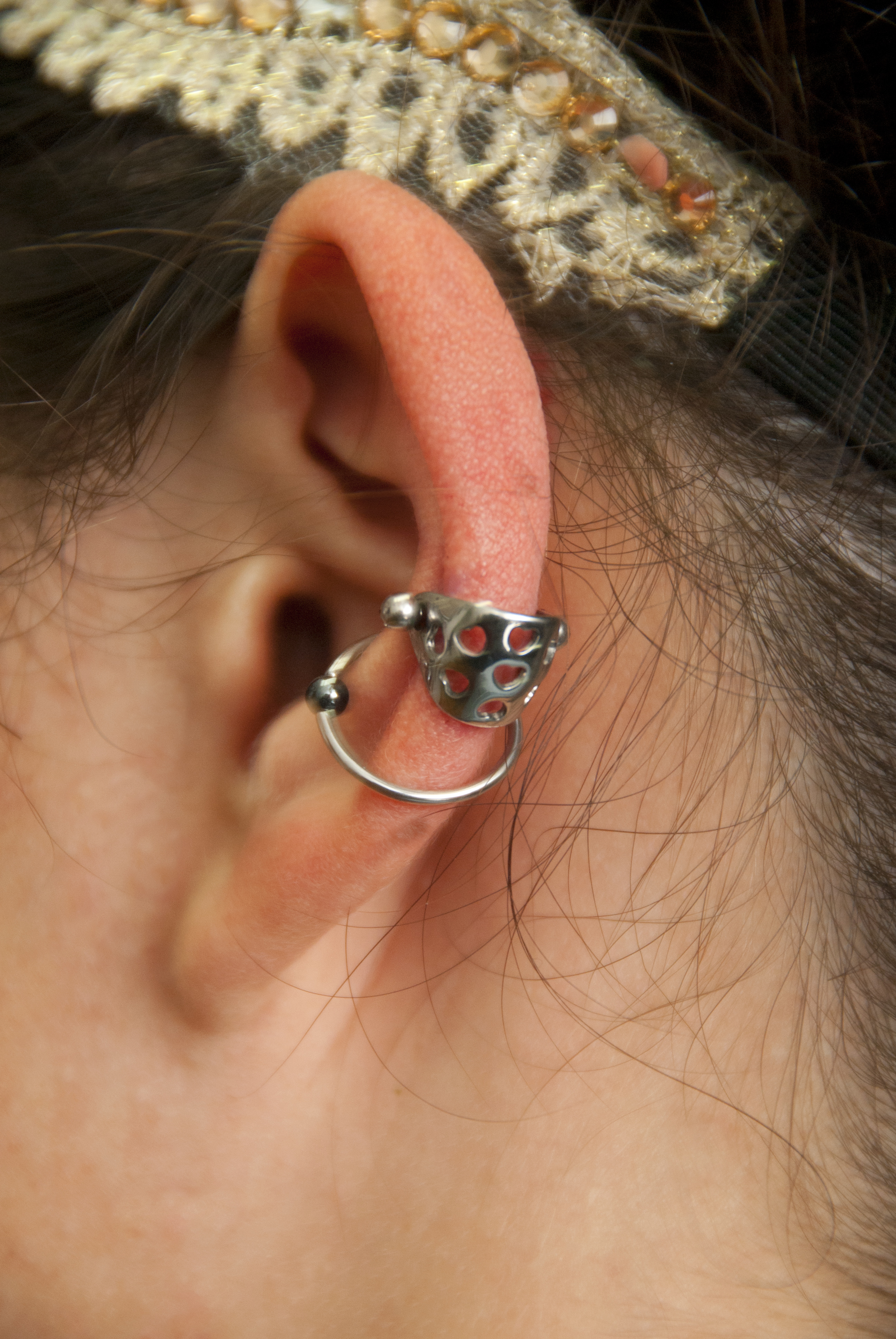 Cartilage cuff