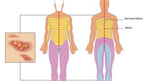 Léčba Postherpetické neuralgie