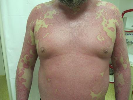 Biologická léčba Lupénky - PSORIÁZY