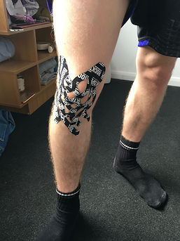 Oedema taping to reduce swellng on the knee.
