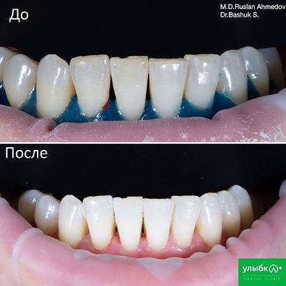 Отбеливание зубов системой Amazing White