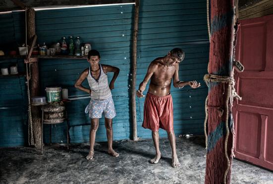 Jorge Soto (48) y su hermana Maritza Soto (50) dentro de  su casa. Maritza también tiene la enfermedad de Huntington. Barranquitas, Zulia. Venezuela. 2015.