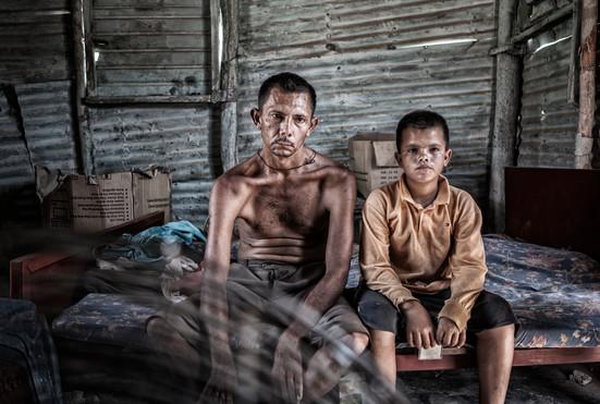 Limardo Soto (37)  y su hijo Maikel Soto(11) dentro de la casa donde viven. Barranquitas, Zulia. Venezuela.2015