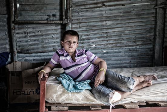 Maikel Soto (11) en su cama. Barranquitas 2015.