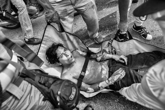 El joven manifestante José Víctor Salazar luego de sufrir quemaduras en accidente durante protestas en Altamira. Caracas 2017